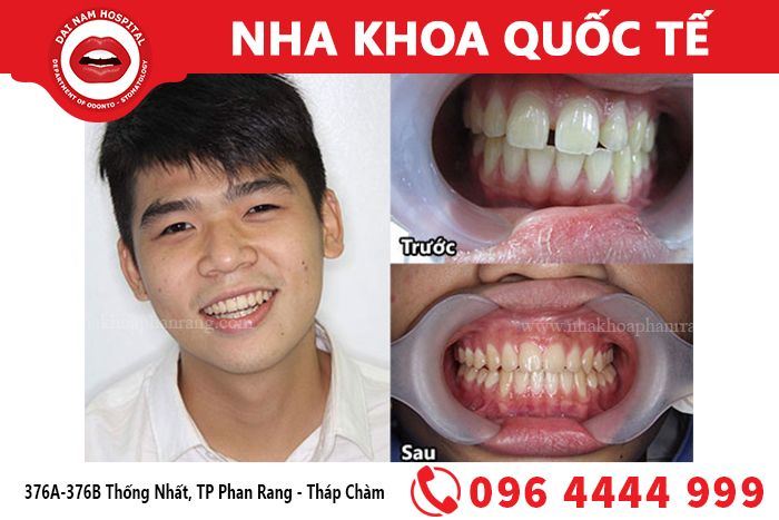 Niềng răng giúp khắc phục những khuyết điểm của răng