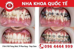 Chỉnh nha - Niềng răng giúp có hàm răng thẳng đều