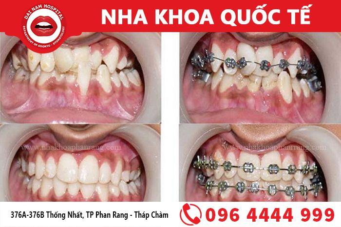 <em>Chỉnh nha - Niềng răng giúp có hàm răng thẳng đều</em>