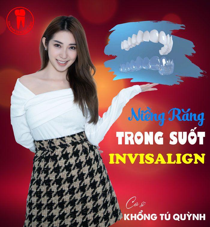 Ca sĩ Khổng Tú Quỳnh niềng răng Invisalign